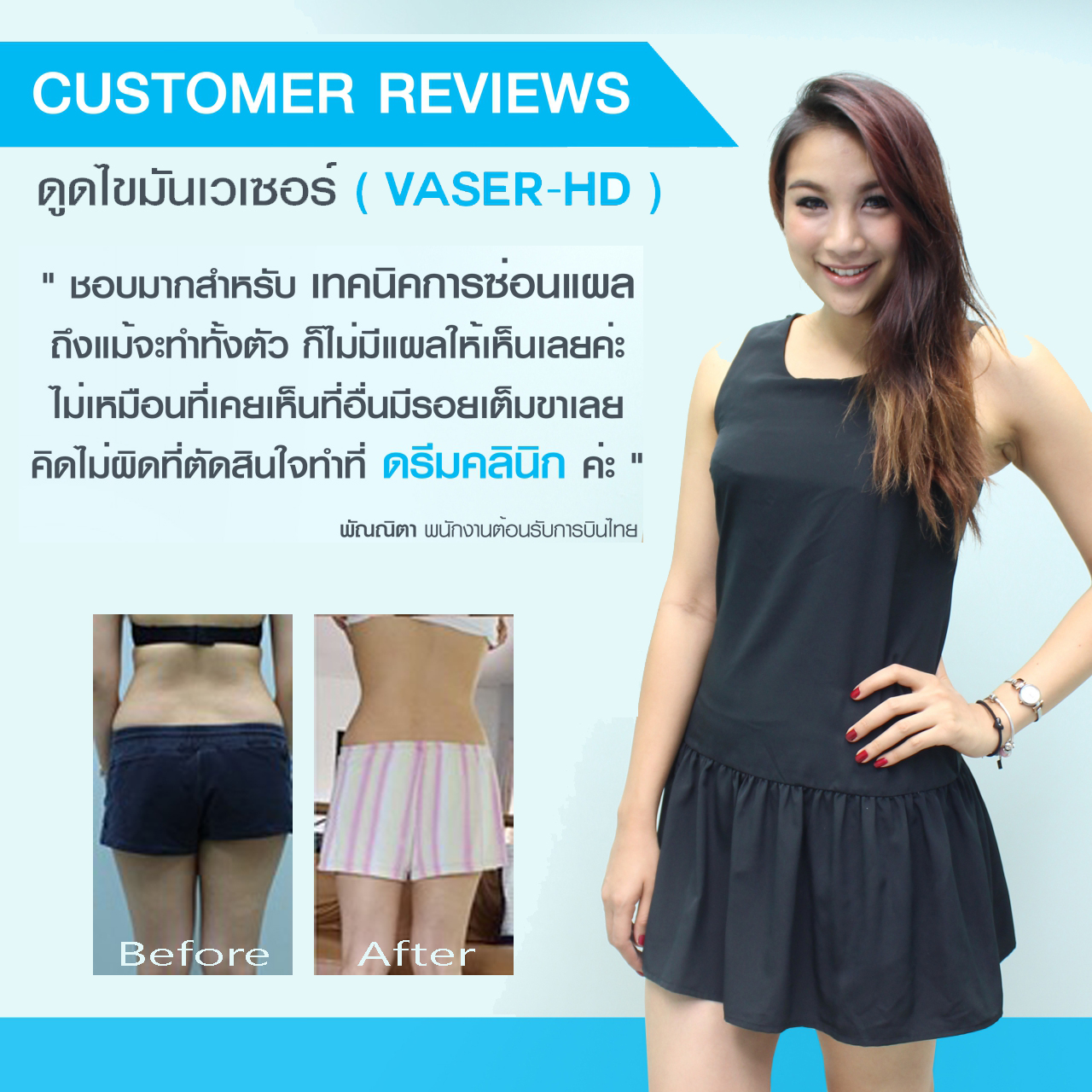 vaser testimonial before after หมอทรงยศ dream