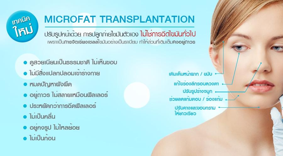 ปลูกถ่ายไขมัน microfat transplantation